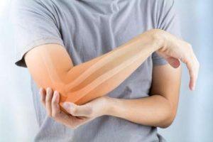 Tendinitis de Codo: causas, síntomas, diagnostico y tratamiento